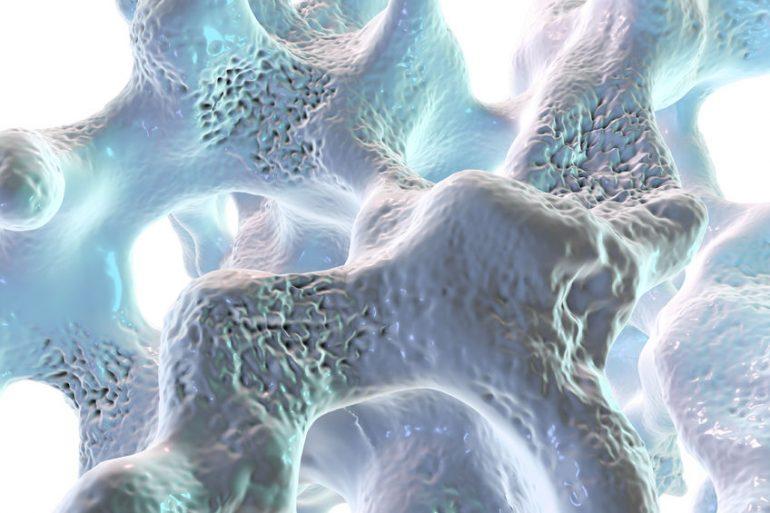 Tessuto osseo con osteoporosi - illustrazione - Diritto d'autore: drmicrobe / 123RF Archivio Fotografico